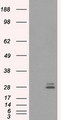 HEK293T cells were transfected with the pCMV6-ENTRY control (Left lane) or pCMV6-ENTRY PRL (Right lane) cDNA for 48 hrs and lysed. Equivalent amounts of cell lysates (5 ug per lane) were separated by SDS-PAGE and immunoblotted with anti-PRL.