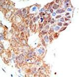 PRMT5 Antibody - Formalin-fixed and paraffin-embedded human cancer tissue reacted with the primary antibody, which was peroxidase-conjugated to the secondary antibody, followed by DAB staining. This data demonstrates the use of this antibody for immunohistochemistry; clinical relevance has not been evaluated. BC = breast carcinoma; HC = hepatocarcinoma.