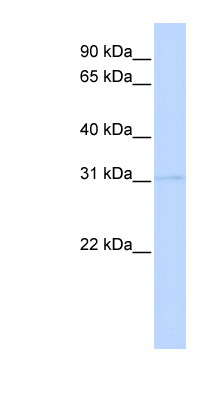 PRMT6 antibody LS-C110491 Western blot of 293T cell lysate.  This image was taken for the unconjugated form of this product. Other forms have not been tested.