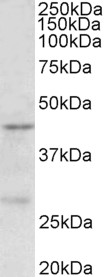 PRMT6 antibody (0.5 ug/ml) staining of MCF7 lysate (35 ug protein in RIPA buffer). Primary incubation was 1 hour. Detected by chemiluminescence.