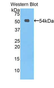 PROC / Protein C Antibody - Western blot of recombinant PROC / Protein C.  This image was taken for the unconjugated form of this product. Other forms have not been tested.