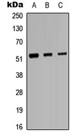 PROC / Protein C Antibody - Western blot analysis of Protein C expression in HeLa (A); Raw264.7 (B); H9C2 (C) whole cell lysates.