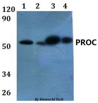 PROC / Protein C Antibody - Western blot of PROC antibody at 1:500 dilution. Lane 1: HEK293T whole cell lysate. Lane 2: Raw264.7 whole cell lysate. Lane 3: H9C2 whole cell lysate. Lane 4: HELA whole cell lysate.