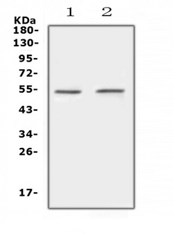 PROC / Protein C Antibody - Western blot analysis of Protein C using anti-Protein C antibody. Electrophoresis was performed on a 5-20% SDS-PAGE gel at 70V (Stacking gel) / 90V (Resolving gel) for 2-3 hours. The sample well of each lane was loaded with 50ug of sample under reducing conditions. Lane 1: rat liver tissue lysates,Lane 2: mouse liver tissue lysates. After Electrophoresis, proteins were transferred to a Nitrocellulose membrane at 150mA for 50-90 minutes. Blocked the membrane with 5% Non-fat Milk/ TBS for 1.5 hour at RT. The membrane was incubated with rabbit anti-Protein C antigen affinity purified polyclonal antibody at 0.5 µg/mL overnight at 4°C, then washed with TBS-0.1% Tween 3 times with 5 minutes each and probed with a goat anti-rabbit IgG-HRP secondary antibody at a dilution of 1:10000 for 1.5 hour at RT. The signal is developed using an Enhanced Chemiluminescent detection (ECL) kit with Tanon 5200 system. A specific band was detected for Protein C at approximately 52KD. The expected band size for Protein C is at 52KD.