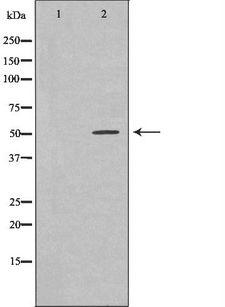 PROC / Protein C Antibody - Western blot analysis of extracts of ES-2 using PROC antibody. The lane on the left is treated with the antigen-specific peptide.
