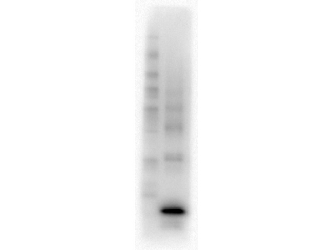Procalcitonin Antibody - Western Blot of Mouse Anti-Procalcitonin antibody. Lane 1: MW. Lane 2: Procalcitonin Protein. Load: 0.05 µg per lane. Primary antibody: Procalcitonin antibody at NEAT overnight at 4°C. Secondary antibody: HRP Mouse IgG secondary antibody at 1:40,000 for 30 min at RT. Block: MB-070 overnight at 4°C. Predicted/Observed size: 13.9 kDa.