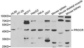 PROCR / EPCR Antibody - Western blot analysis of extracts of various cell lines.