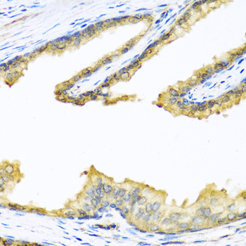 Immunohistochemistry of paraffin-embedded human prostate, at a dilution of 1:100.