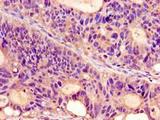 PROKR2/Prokineticin Receptor 2 Antibody - Immunohistochemistry image of paraffin-embedded human colon cancer at a dilution of 1:100