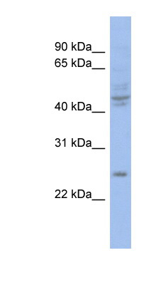 PROP1 antibody LS-C110318 Western blot of COLO205 cell lysate.  This image was taken for the unconjugated form of this product. Other forms have not been tested.