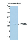 PROS1 / Protein S Antibody - Western blot of recombinant PROS1 / Protein S.  This image was taken for the unconjugated form of this product. Other forms have not been tested.