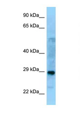 PROSC antibody Western blot of Fetal Lung lysate. Antibody concentration 1 ug/ml.  This image was taken for the unconjugated form of this product. Other forms have not been tested.