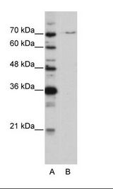 PRPF3 Antibody - A: Marker, B: HepG2 Cell Lysate.  This image was taken for the unconjugated form of this product. Other forms have not been tested.