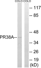 Western blot analysis of lysates from COLO cells, using PRPF38A Antibody. The lane on the right is blocked with the synthesized peptide.