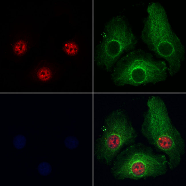 PRPF4 Antibody - Staining HeLa cells by IF/ICC. The samples were fixed with PFA and permeabilized in 0.1% Triton X-100, then blocked in 10% serum for 45 min at 25°C. Samples were then incubated with primary Ab(1:200) and mouse anti-beta tubulin Ab(1:200) for 1 hour at 37°C. An AlexaFluor594 conjugated goat anti-rabbit IgG(H+L) Ab(1:200 Red) and an AlexaFluor488 conjugated goat anti-mouse IgG(H+L) Ab(1:600 Green) were used as the secondary antibod
