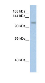 PRPF6 antibody LS-C40319 Western blot of Transfected 293T cell lysate.  This image was taken for the unconjugated form of this product. Other forms have not been tested.