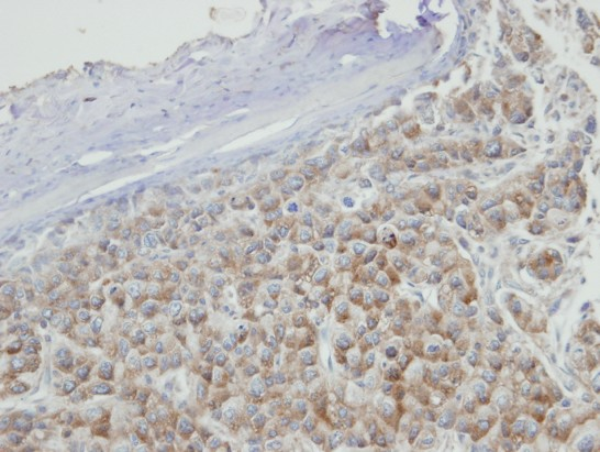 IHC of paraffin-embedded Hep3B xenograft using PRPS2 antibody at 1:100 dilution.