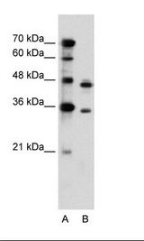 PRPS2 Antibody - A: Marker, B: Jurkat Cell Lysate.  This image was taken for the unconjugated form of this product. Other forms have not been tested.