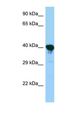 PRPSAP1 antibody Western blot of Mouse Kidney lysate. Antibody concentration 1 ug/ml.  This image was taken for the unconjugated form of this product. Other forms have not been tested.
