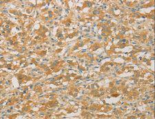 PRPSAP1 Antibody - Immunohistochemistry of paraffin-embedded Human gastric cancer using PRPSAP1 Polyclonal Antibody at dilution of 1:50.
