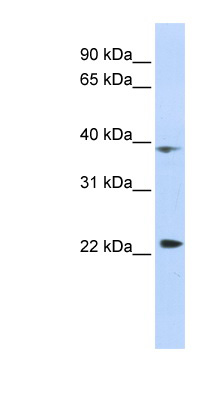 PRR11 antibody LS-C102377 Western blot of HepG2 cell lysate.  This image was taken for the unconjugated form of this product. Other forms have not been tested.