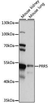 PRR5 Antibody - Western blot analysis of extracts of various cell lines, using PRR5 antibody at 1:1000 dilution. The secondary antibody used was an HRP Goat Anti-Rabbit IgG (H+L) at 1:10000 dilution. Lysates were loaded 25ug per lane and 3% nonfat dry milk in TBST was used for blocking. An ECL Kit was used for detection and the exposure time was 10s.