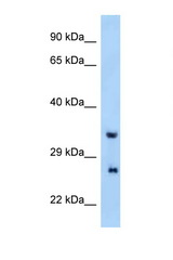 PRRG4 antibody Western blot of Mouse Liver lysate. Antibody concentration 1 ug/ml.  This image was taken for the unconjugated form of this product. Other forms have not been tested.