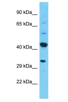 PRSS38 Antibody - PRSS38 antibody Western Blot of ACHN. Antibody dilution: 1 ug/ml.  This image was taken for the unconjugated form of this product. Other forms have not been tested.