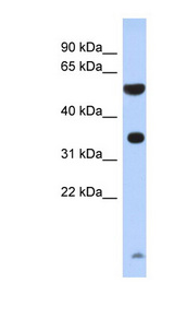 PRSS48 / ESSPL antibody LS-C102810 Western blot of Fetal Brain lysate.  This image was taken for the unconjugated form of this product. Other forms have not been tested.