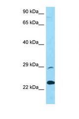 PRSS58 antibody Western blot of U937 Cell lysate. Antibody concentration 1 ug/ml.  This image was taken for the unconjugated form of this product. Other forms have not been tested.