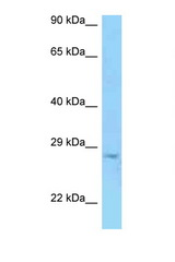 PRSS58 Antibody - PRSS58 antibody Western blot of Jurkat Cell lysate. Antibody concentration 1 ug/ml.  This image was taken for the unconjugated form of this product. Other forms have not been tested.
