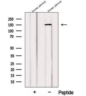 PRUNE2 Antibody - Western blot analysis of extracts of human placenta extracts using PRUNE2 antibody. The lane on the left was treated with blocking peptide.