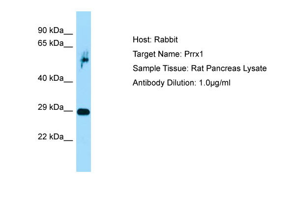 PRX-1 / PRRX1 Antibody -  This image was taken for the unconjugated form of this product. Other forms have not been tested.