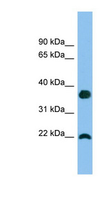 WFDC1 antibody LS-C116685 Western blot of A549 cell lysate.  This image was taken for the unconjugated form of this product. Other forms have not been tested.