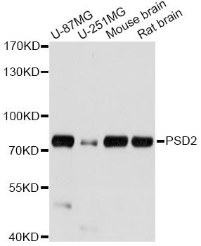 PSD2 Antibody - Western blot analysis of extracts of various cell lines, using PSD2 antibody at 1:1000 dilution. The secondary antibody used was an HRP Goat Anti-Rabbit IgG (H+L) at 1:10000 dilution. Lysates were loaded 25ug per lane and 3% nonfat dry milk in TBST was used for blocking. An ECL Kit was used for detection and the exposure time was 5s.