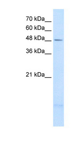 PSD3 Antibody - PSD3 antibody ARP42443_T100-NP_996792-PSD3(pleckstrin and Sec7 domain containing 3) Antibody Western blot of A204 cell lysate.  This image was taken for the unconjugated form of this product. Other forms have not been tested.