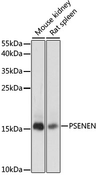 PSENEN / PEN-2 Antibody - Western blot analysis of extracts of various cell lines, using PSENEN antibody at 1:1000 dilution. The secondary antibody used was an HRP Goat Anti-Rabbit IgG (H+L) at 1:10000 dilution. Lysates were loaded 25ug per lane and 3% nonfat dry milk in TBST was used for blocking. An ECL Kit was used for detection and the exposure time was 10s.