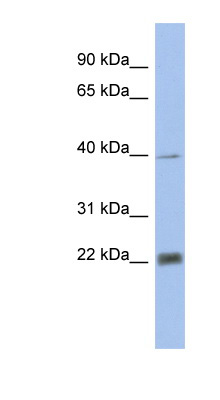 PSMA4 antibody LS-C110901 Western blot of Fetal Heart lysate.  This image was taken for the unconjugated form of this product. Other forms have not been tested.