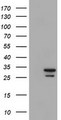 HEK293T cells were transfected with the pCMV6-ENTRY control (Left lane) or pCMV6-ENTRY PSMA6 (Right lane) cDNA for 48 hrs and lysed. Equivalent amounts of cell lysates (5 ug per lane) were separated by SDS-PAGE and immunoblotted with anti-PSMA6.