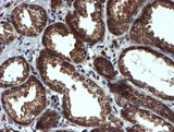 IHC of paraffin-embedded Human prostate tissue using anti-PSMA6 mouse monoclonal antibody.