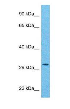 PSMA8 Antibody - Western blot of PSA7L Antibody with human Ovary Tumor lysate.  This image was taken for the unconjugated form of this product. Other forms have not been tested.