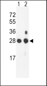 Western blot of PSMB1 Antibody in mouse NIH-3T3 cell line(lane 1) and mouse bladder tissue(lane 2) lysates (35 ug/lane). PSMB1 (arrow) was detected using the purified antibody.