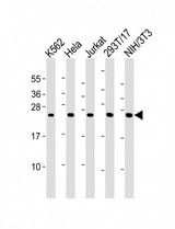 All lanes: Anti-PSMB3 Antibody (Center) at 1:2000 dilution. Lane 1: K562 whole cell lysates. Lane 2: HeLa whole cell lysates. Lane 3: Jurkat whole cell lysates. Lane 4: 293T/17 whole cell lysates. Lane 5: NIH/3T3 whole cell lysates Lysates/proteins at 20 ug per lane. Secondary Goat Anti-Rabbit IgG, (H+L), Peroxidase conjugated at 1:10000 dilution. Predicted band size: 23 kDa. Blocking/Dilution buffer: 5% NFDM/TBST.