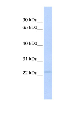 PSMB3 antibody LS-C102705 Western blot of Fetal Muscle lysate.  This image was taken for the unconjugated form of this product. Other forms have not been tested.