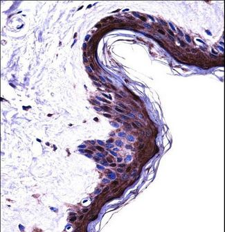 PSMB5 Antibody immunohistochemistry of formalin-fixed and paraffin-embedded human skin tissue followed by peroxidase-conjugated secondary antibody and DAB staining.