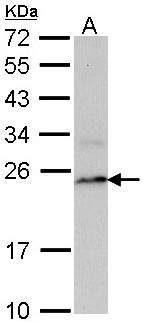 Sample (30 ug of whole cell lysate). A: Raji. 12% SDS PAGE. LMP7 / PSMB8 antibody diluted at 1:1000.