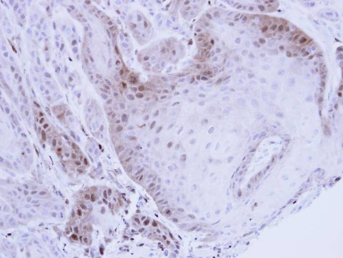 IHC of paraffin-embedded Cal27 Xenograft using PSMB8 antibody at 1:100 dilution.