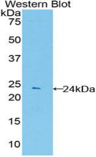 PSMB8 / LMP7 Antibody - Western blot of recombinant LMP7 / PSMB8.  This image was taken for the unconjugated form of this product. Other forms have not been tested.