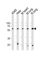 PSMC1 Antibody - PRS4 Antibody western blot of A549,HeLa cell line and mouse heart and lung,rat lung tissue lysates (35 ug/lane). The PRS4 antibody detected the PRS4 protein (arrow).