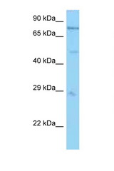 PSMC1 antibody Western blot of Mouse Heart lysate. Antibody concentration 1 ug/ml.  This image was taken for the unconjugated form of this product. Other forms have not been tested.